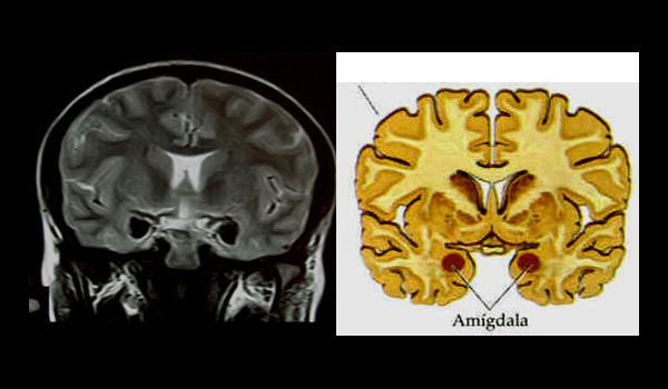 Resultado de imagen de cuerpo amigdalino
